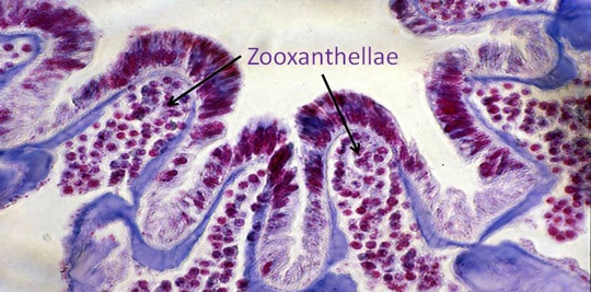 A cross section of a coral polyp showing the zooxanthellae within the tissue. The coral was preserved and processed for viewing under a microscope. The tissue has been stained with a purple dye.